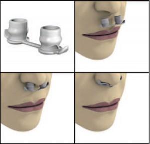 pacientes-tubos